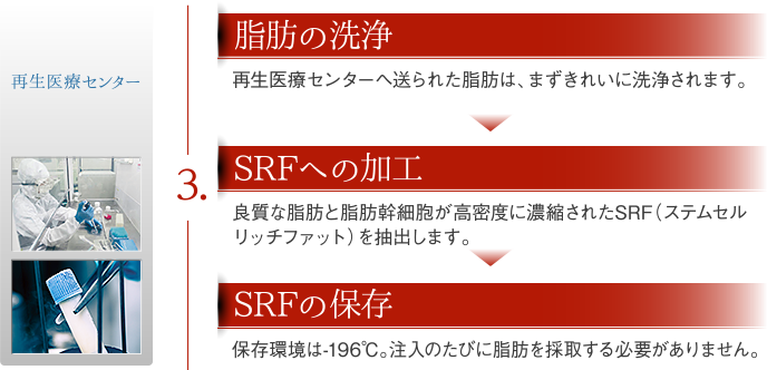 3,脂肪の洗浄→SRFへの加工→SRFの保存